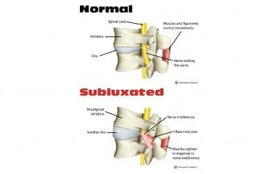 La subluxation